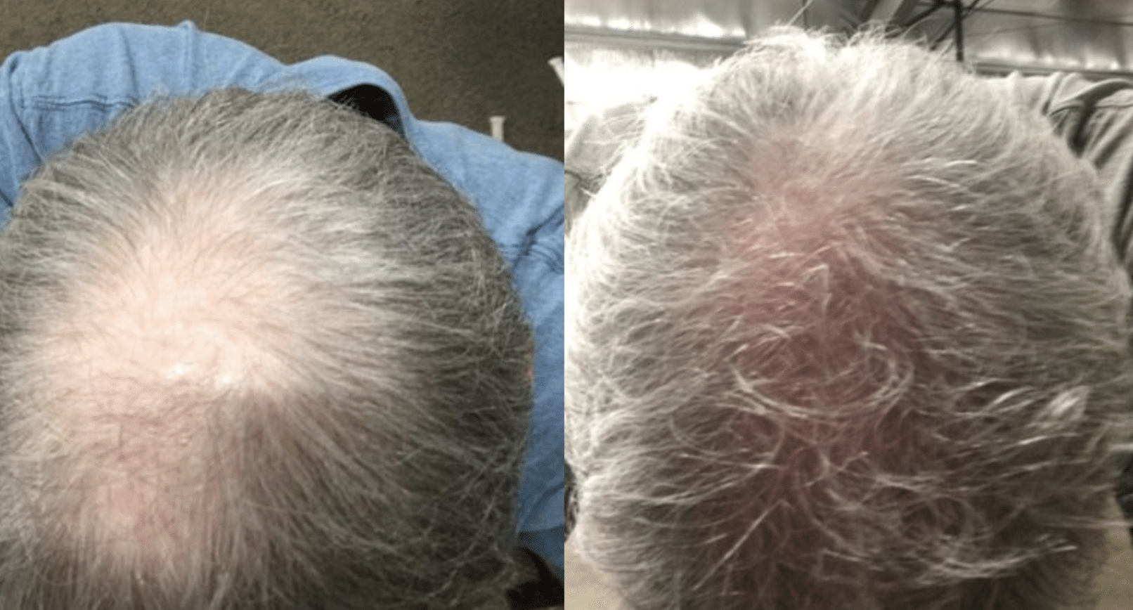 kiierr - laser cap for hair loss